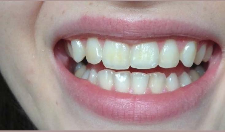 sve je gotovo za pet minuta: evo kako napraviti domaću zubnu pastu od koje će vam zubi zablistati kao nikada (video)