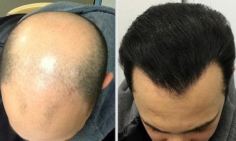 Razlika između DHI i FUE metode kod transplatacije kose